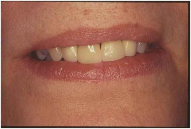 Pittsburgh periodontist picture of Smile