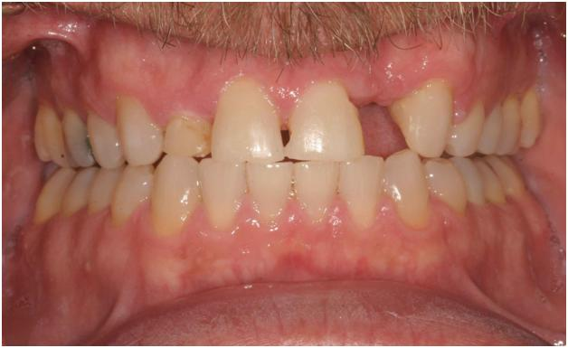 Pittsburgh periodontist picture before crown lengthening surgery