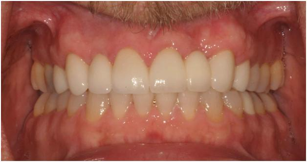 Pittsburgh periodontist picture after crown lengthening surgery