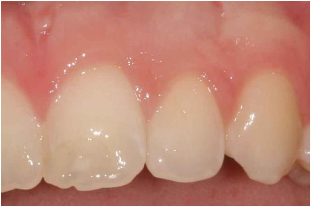 Pittsburgh periodontal biopsy after