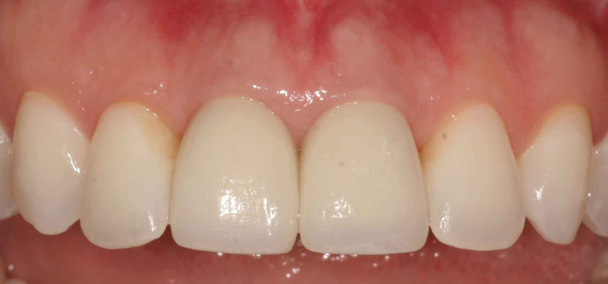 Pittsburgh Pittsburgh periodontist picture after crown lengthening