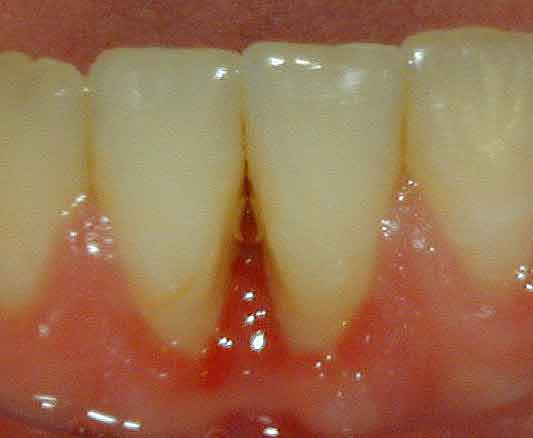 Pittsburgh periodontist picture of osteonecrosis of the jaw after treatment